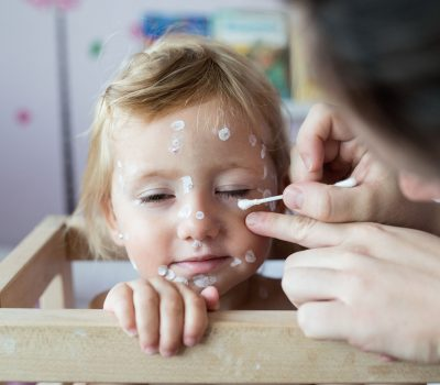 64864089 - little two year old girl at home sick with chickenpox, white antiseptic cream applied by her mother to the rash